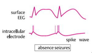 gelombang EEG